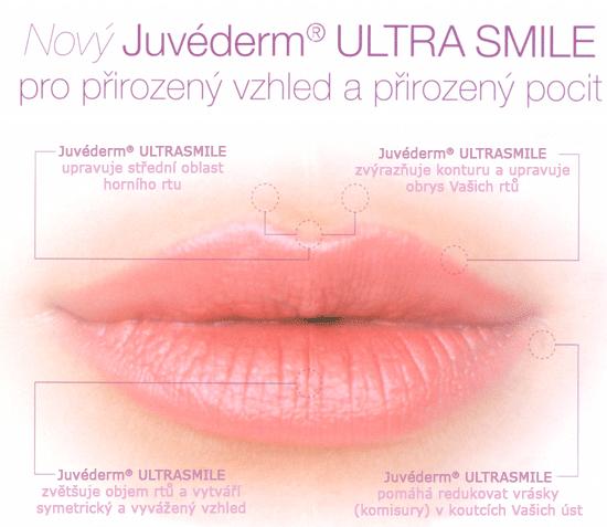 Juvéderm ULTRA SMILE | MUDr  Alexandra Rosová
